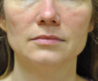 43 Year Old Woman treated with Ultherapy and Sculptra after 1026748