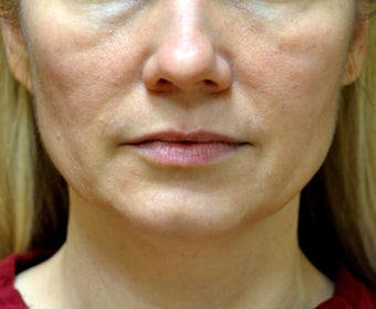 43 Year Old Woman treated with Ultherapy and Sculptra before 1026748