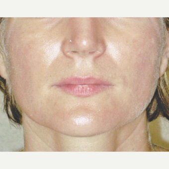 45-54 year old woman treated with Botox before 3022825