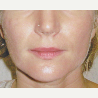 45-54 year old woman treated with Botox after 3022825