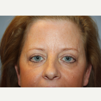 45-54 year old woman treated with Eyelid Surgery after 3708617
