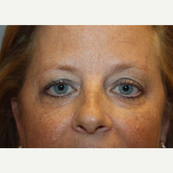 45-54 year old woman treated with Eyelid Surgery before 3708617