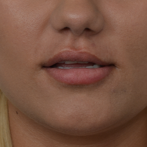 18-24 year old woman treated with Injectable Fillers before 3335413