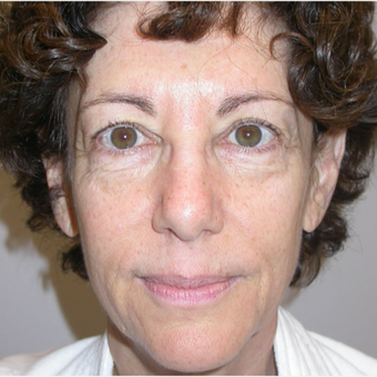 56 year old woman treated with Cheek Augmentation