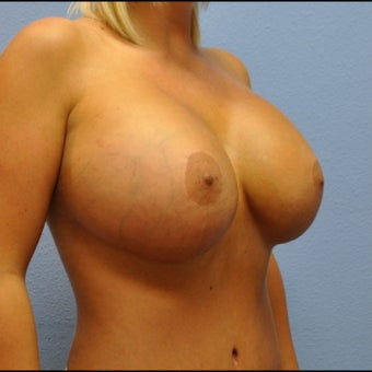Breast Augmentation, Breast Implants 1527120