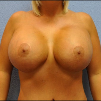 Breast Augmentation, Breast Implants after 1527120