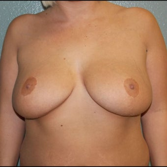 Breast Augmentation, Breast Implants before 1527120