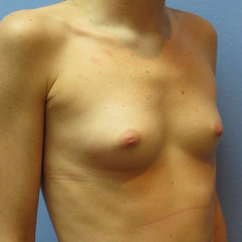 25-34 year old woman treated with Breast Augmentation before 3319931