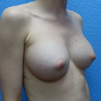 25-34 year old woman treated with Breast Augmentation after 3319931