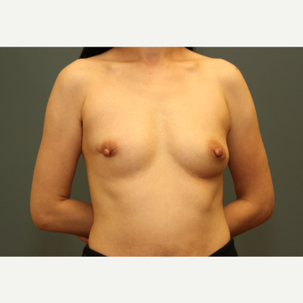 49 year old woman treated with Bilateral Immediate Breast Reconstruction w/ Gel implants & Alloderm before 3782537