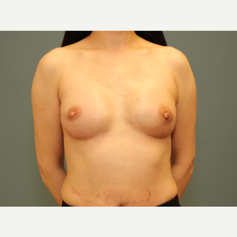49 year old woman treated with Bilateral Immediate Breast Reconstruction w/ Gel implants & Alloderm after 3782537