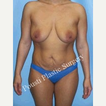25-34 year old woman treated with Breast Implants before 3584712