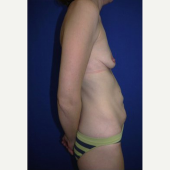 Breast Augmentation before 3744205