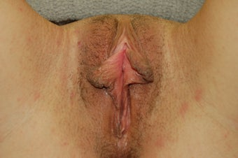 24 year old for labiaplasty.