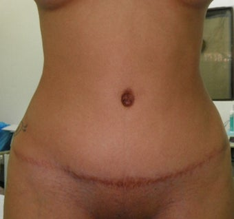 25-34 year old woman treated with Tummy Tuck after 3122914