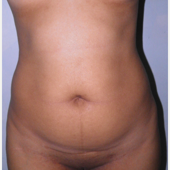 25-34 year old woman treated with Tummy Tuck before 3122914