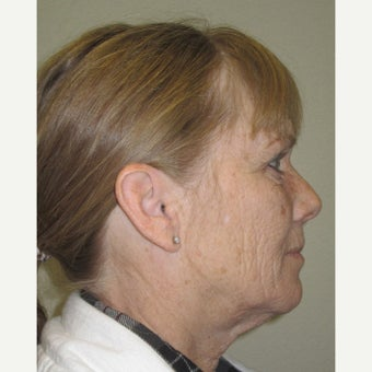 55-64 year old woman treated with Facelift, brow lift, and lower eyelids