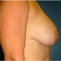53 year old woman treated with Breast Lift with Implants before 3665993