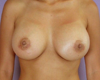 Breast Augmentation after 281409