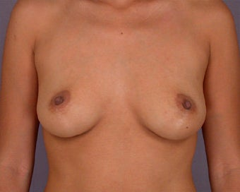 Breast Augmentation before 281409