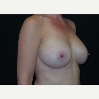 35-44 year old woman treated with Breast Augmentation after 3305034