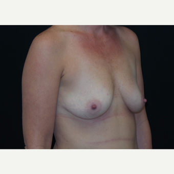 35-44 year old woman treated with Breast Augmentation before 3305034