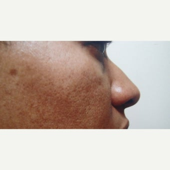 25-34 year old woman treated with African American Rhinoplasty 1622504