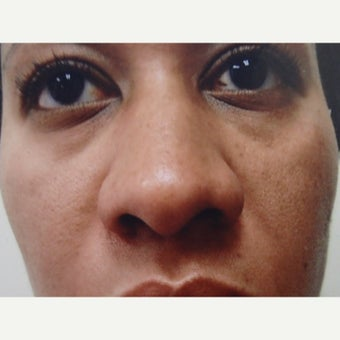 25-34 year old woman treated with African American Rhinoplasty before 1622504