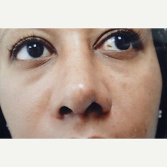 25-34 year old woman treated with African American Rhinoplasty after 1622504