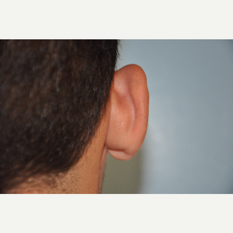 17 or under year old man treated with Ear Surgery