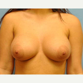 21 year old woman treated with Breast Augmentation, B to D cup, 350 cc saline filled to 400 cc after 3489729