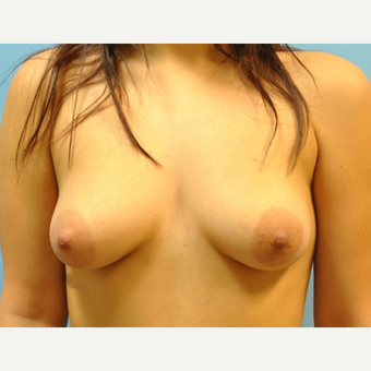 21 year old woman treated with Breast Augmentation, B to D cup, 350 cc saline filled to 400 cc before 3489729