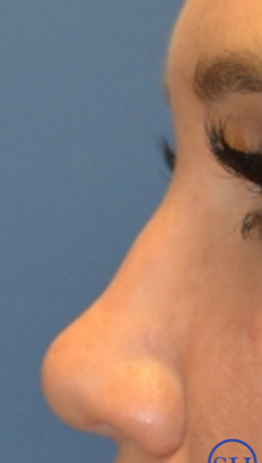 Nonsurgical Liquid Rhinoplasty with fillers - immediate results before 2718835
