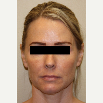 45-54 year old woman treated with Voluma before 3215330