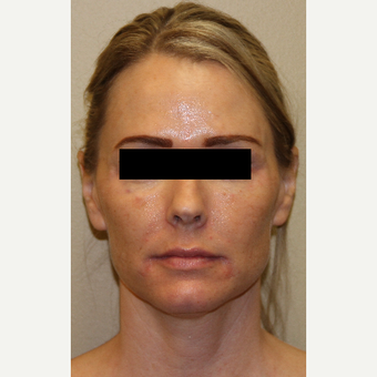 45-54 year old woman treated with Voluma after 3215330