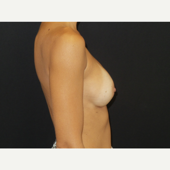 35-44 year old woman treated with Breast Implants after 3651592