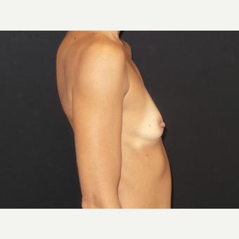 35-44 year old woman treated with Breast Implants before 3651592