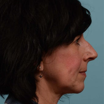 25-34 year old woman treated with Rhinoplasty 1597209