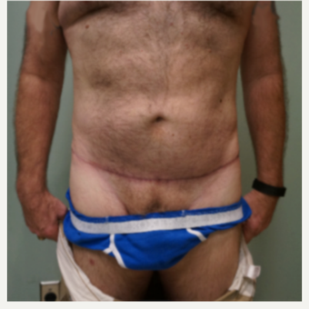 55-64 year old man treated with Male Tummy Tuck after 3454389