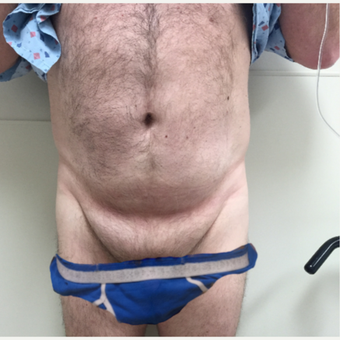 55-64 year old man treated with Male Tummy Tuck before 3454389