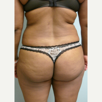55-64 year old woman treated with Brazilian Butt Lift before 3582600