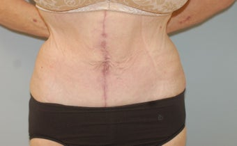 55-64 year old woman treated with Panniculectomy after 2315567