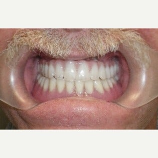 65-74 year old man treated with All-on-4 Dental Implants after 2454771