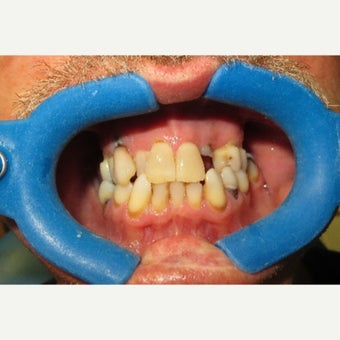 65-74 year old man treated with All-on-4 Dental Implants before 2454771