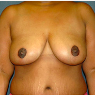 49 year old woman treated with Breast Lift after 3665956