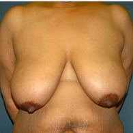 49 year old woman treated with Breast Lift before 3665956