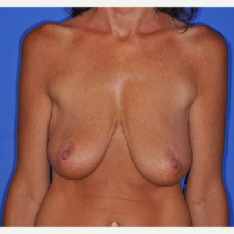 35-44 year old woman treated with Breast Lift before 3482665