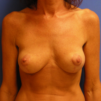 35-44 year old woman treated with Breast Lift after 3482665