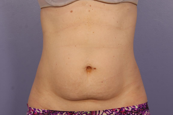 CoolSculpting before 1599498