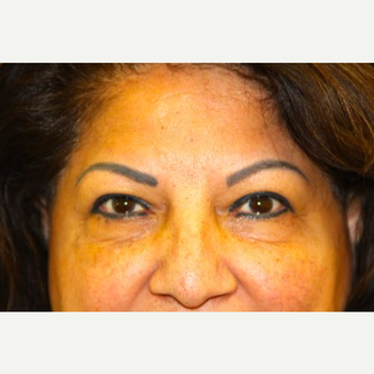 55-64 year old woman treated with Eye Bags Treatment before 2751274